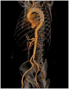 患者术后影像,支架精确定位、病变隔绝成功