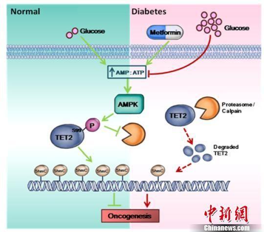 急速赛车彩票数据:中国学者率先发现糖尿病与癌症之间新通路_助力癌症防治