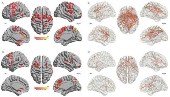皇家彩票网平台可以吗:中国学者领衔国际合作团队揭示抑郁症与睡眠问题之间的脑调控机制